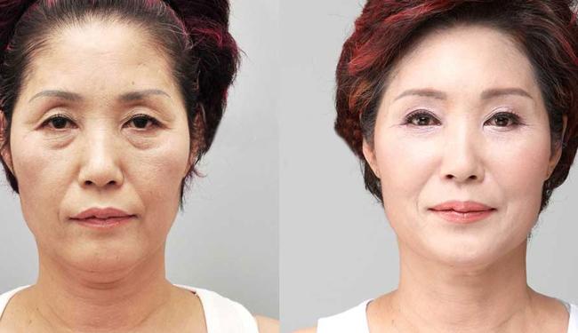 韩国微整形手术前后对比照片图片