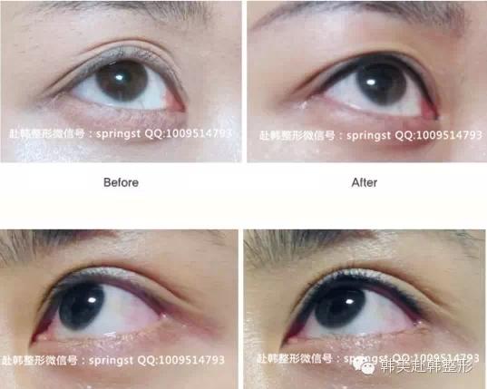 韩国半永久化妆术 素颜也能美美哒