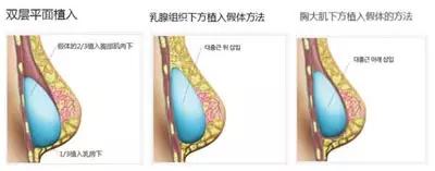 假体隆胸文案