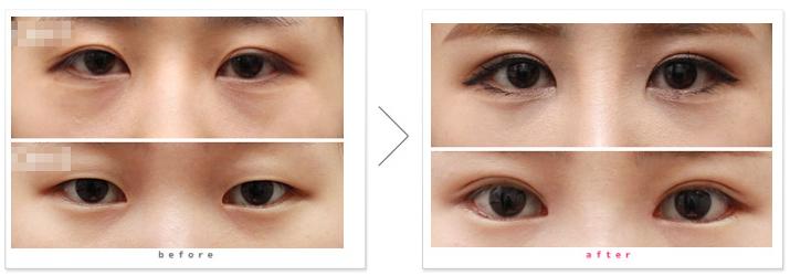 切开法双眼皮的术后护理