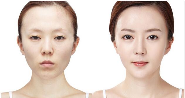 韩国面部注射填充,通过对面部不同部位进行适合的注射施术来填充面部,使面部的饱满度和分量感增加,并生成胶原蛋白,改善面部皱纹,还能促进伤口愈合。特别是对于需要整形的鼻背矫正和凹陷的面颊,效果尤为显著。对于额头或法令纹等深皱纹部位,通过注射来改善皱纹,并使皮肤恢复弹力。那么,哪些部位可以进行面部填充呢?下面KB韩美