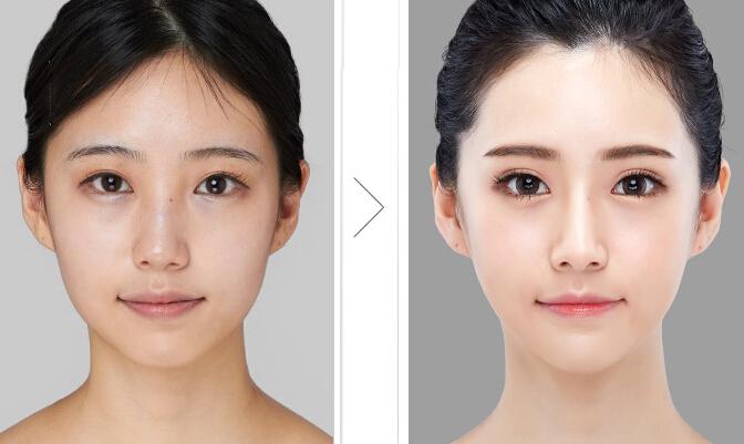 下颌角肥大_什么是下颌角